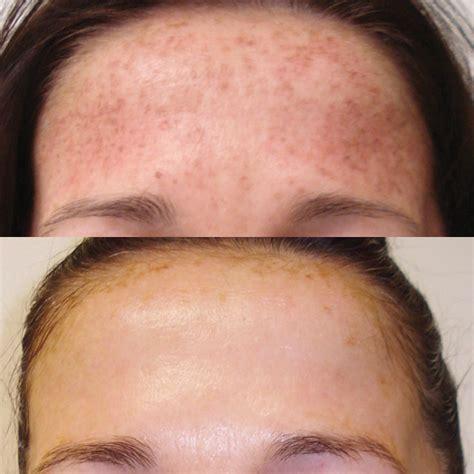 pigmentation sun spots