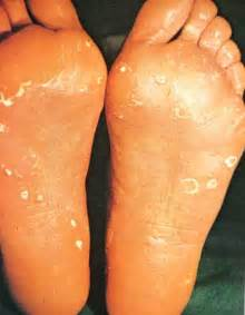 Tinea Pedis - Blacksburg and Roanoke, Virginia Podiatrist - Shenandoah ...  Tinea Infections Athlete's Foot