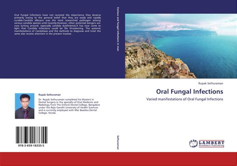 Oral Fungal Infections 978 3 659 18335 5 3659183350