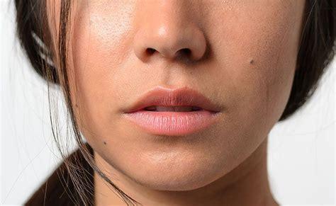 mitos  verdades sobre  plastica  nariz esclarecidos