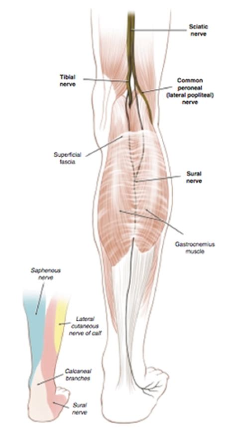 irritation  neuroma   sural nerve posterior foot pain