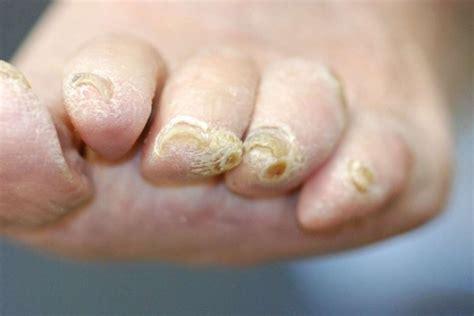 mycose si e b malattie delle unghie dei piedi