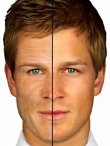 Facial Skin Problems & Men   Redness   Male Acne   Rosacea