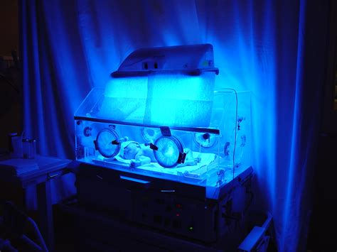 Pasha in incubator with blue light | This incubator was