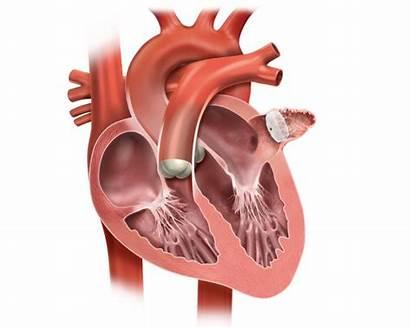 Watchman Device Heart Implant Atrial Illustration Afib