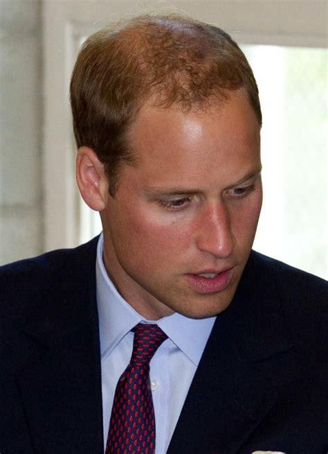 jennifer aniston  prince william bald  beautiful