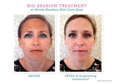 bio brasion treatment