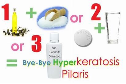 Solutions Remedies Pilaris Keratosis Problem Fight Three