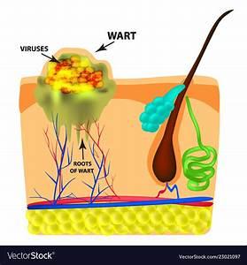 Plantar Wart Root Diagram