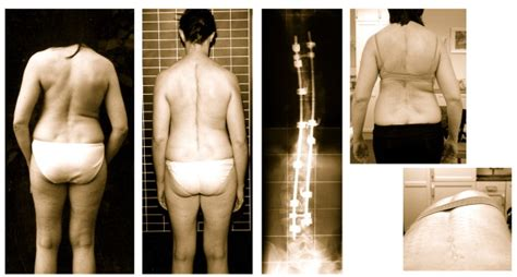 Balanced Appearance With Marked Rib-hump After Surgery
