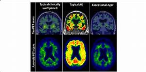 Tau And Amyloid Positron Emission Tomography  Pet  Scans