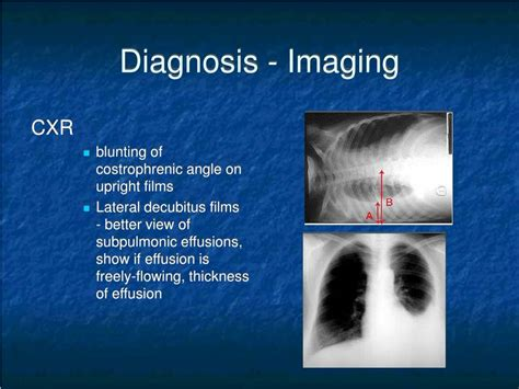 PPT - Parapneumonic Effusions and Empyema PowerPoint ...