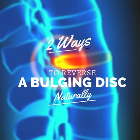Exercises for bulging disc in lower back