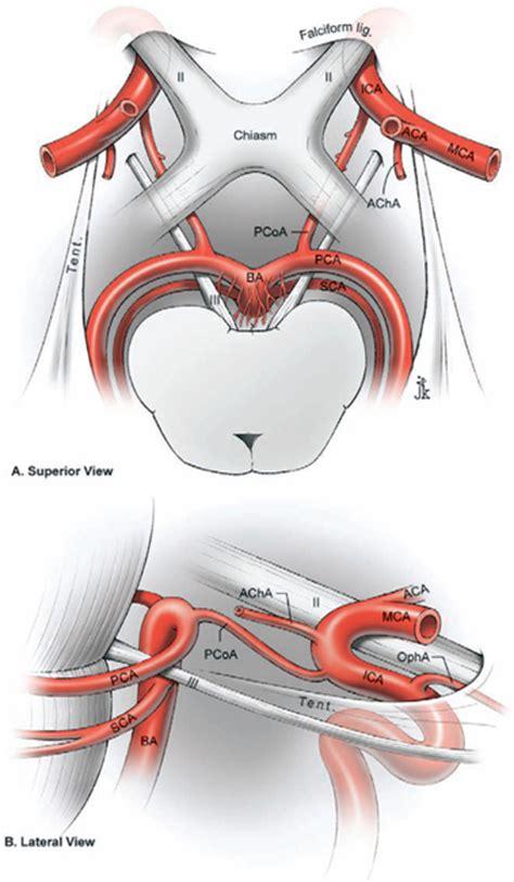 Ophthalmic Artery Anatomy