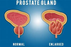 What Is The Role Of The Prostate Gland