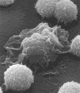 Scanning electron micrograph of a single macrophage ...