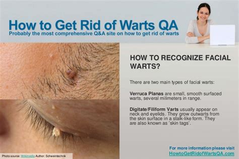 how to get rid of planters wart warts images
