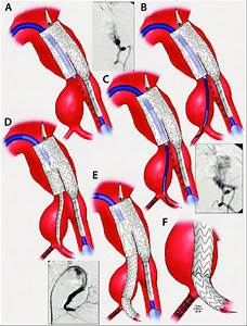 A Patient With Large Internal Iliac Artery Aneurysms Needs