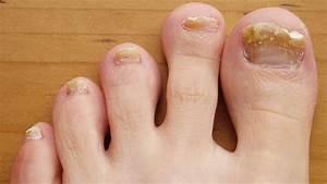 Левомеколь грибок на ногах