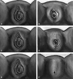 Female genital mutilation/cutting | Assessment & Screening ...