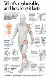 Какое эффективное лекарство от артрита