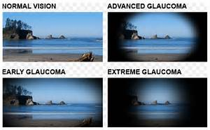 ... history of glaucoma should have eye exams performed every 2 years  Glaucoma Eyes and Vision