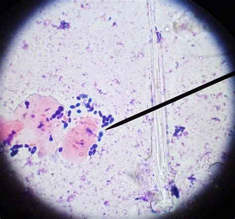 budding yeast    ear cytology veterinary tech