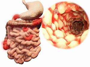 Crohn U2019s Disease Symptoms  Causes  Treatment  And
