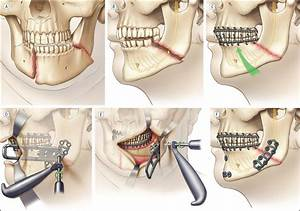 Repairing Angle Of The Mandible Fractures With A Strut