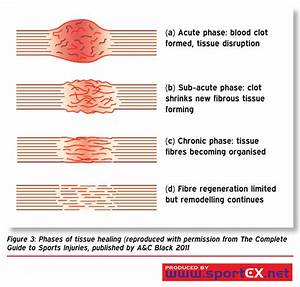 Phases Of Tissue Healing  Reproduced With Permission From