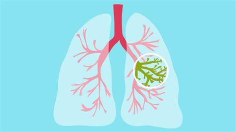 Cystic Fibrosis Articles Symptoms Treatment And More