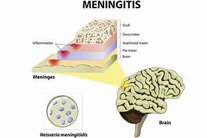 The 3 Pathogens That Cause Meningitis