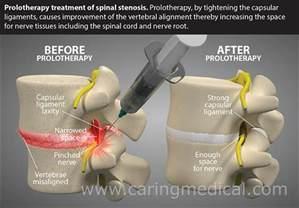 Lumbar Spinal Stenosis Surgery