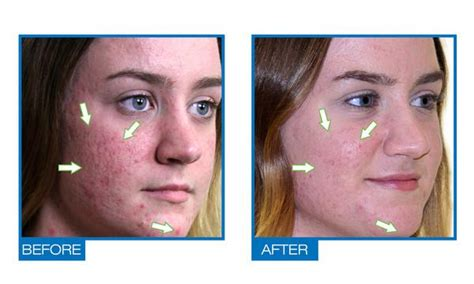 Natural Acdue Acne Scars And Dark Spots Removal Treatment