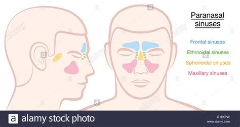 Paranasal Sinuses On A Male Face In Different Colors