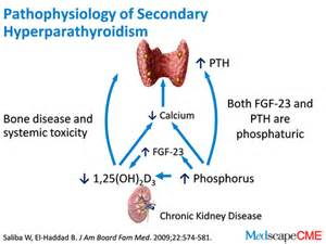 Hyperparathyroidism, Secondary  Parathyroid Disorders Hyperparathyroidism