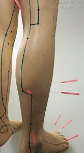 Acupuncture Points Used For Sciatica