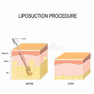 Liposuction  Cannula Into The Fat Layer Beneath Skin