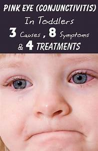 25 Best Ideas About How To Treat Conjunctivitis On
