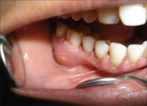 Gum Periodontal Abscess