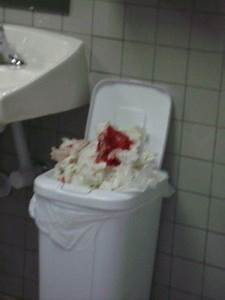 singing savanah pro se With blood loss in a bathroom stall