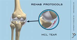 Progressive Stages Of Mcl Partial Tear