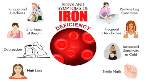 10 Warning Signs You May Have Iron Deficiency