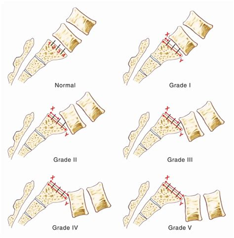 spondylolisthesis overview grades causes and treatments