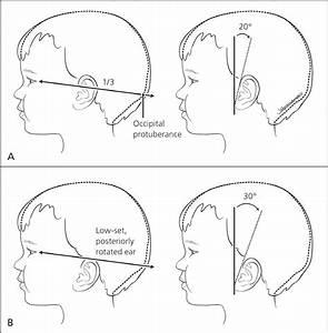 A Comprehensive Newborn Exam  Part I  General  Head And