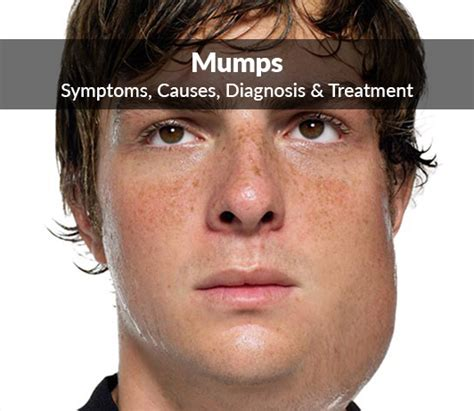 Parotitis Mumps Symptoms