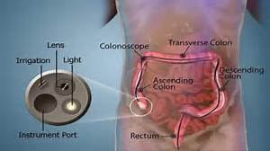 Colonoscopy: Risk, Procedure, Preparation & Side Effects – Best ... Colonoscopy