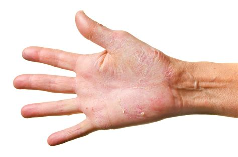 Athletes Foot Could Also Be Called Athletes Hand
