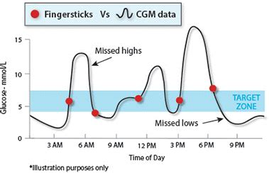 managing blood glucose levels medtronic diabetes