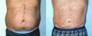 Male Stomach And Flanks Liposuction Front View Photos ...